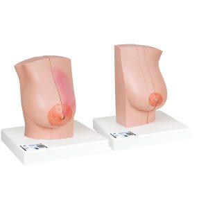 Brustmodelle